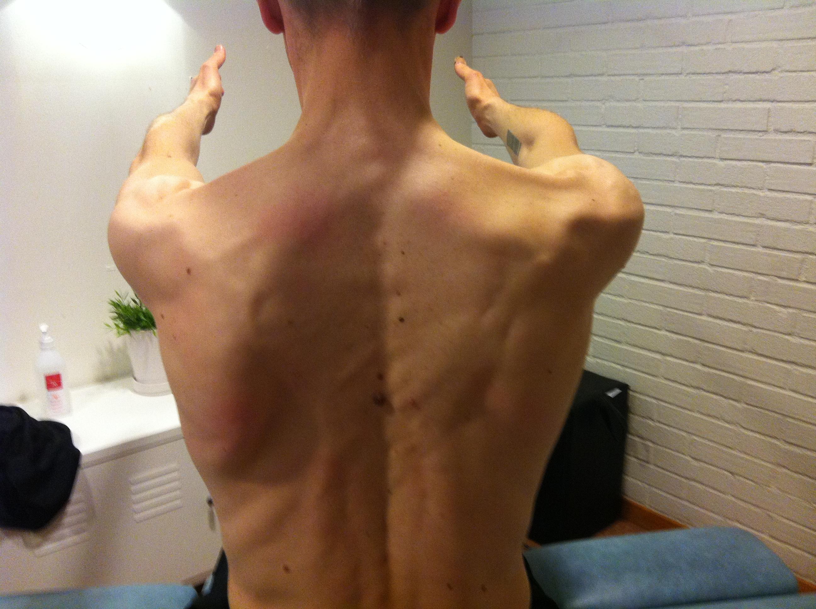 ont i musklerna efter träning
